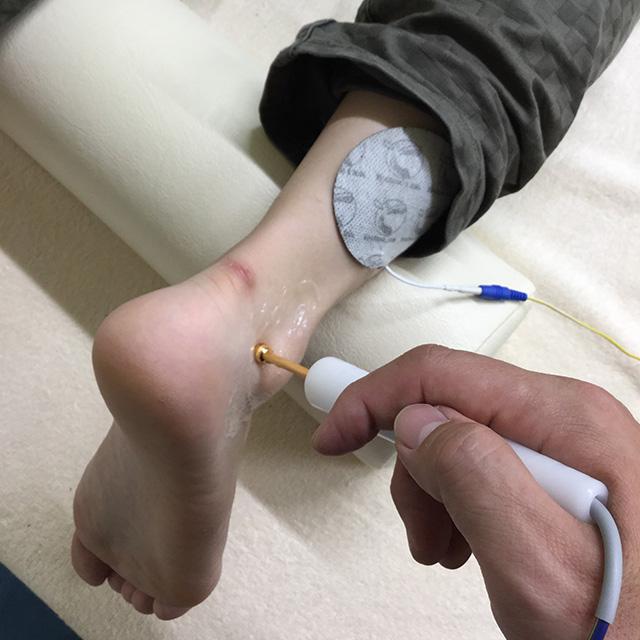テクトロンのシングルプロープをつかった足関節捻挫の治療
